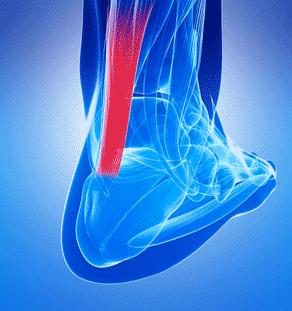 Tendon Pain Stem Cell treatment