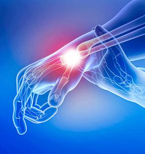 Wrist Pain Stem Cell treatment