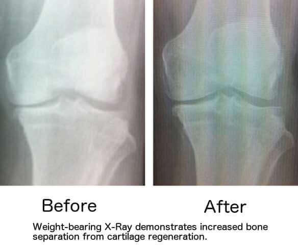 Knee X-Ray after stem cell treatment