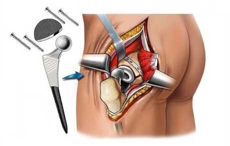 Hip placement surgery
