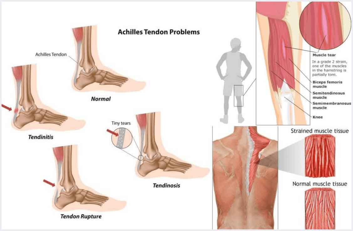 tendon muscle pain stem cell treatment