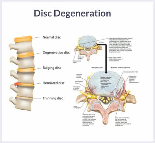intervertebral disc degeneration