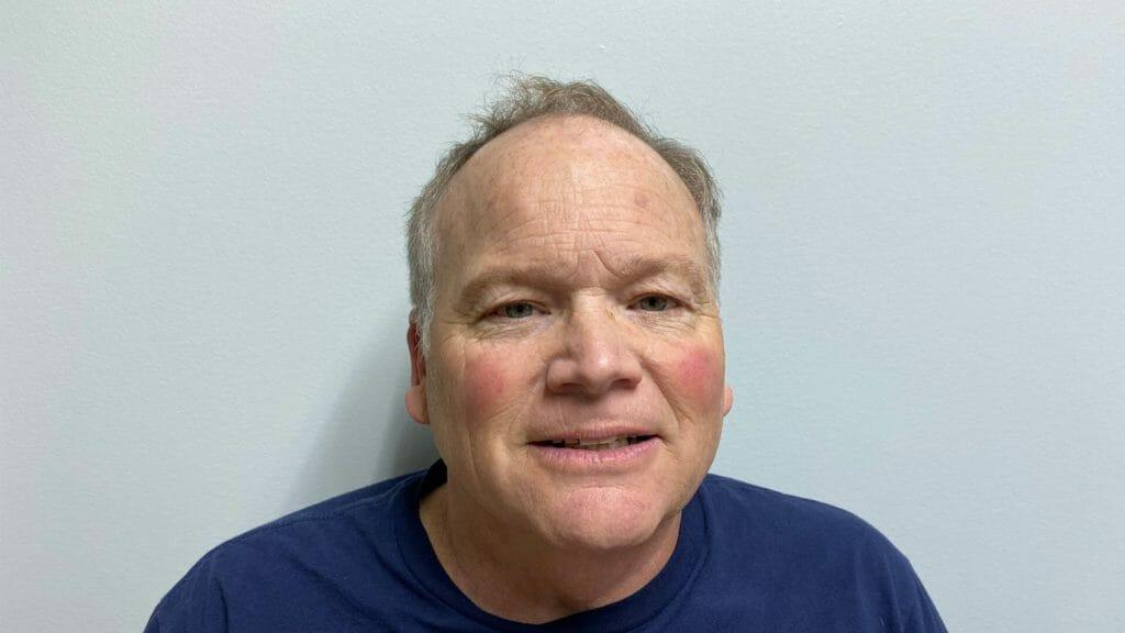 Steve stem cell treatment of his knees